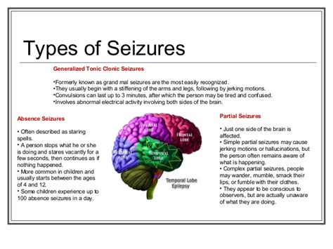 Detox Grand Mal Seizure by Epilepsy Ontario Presentation January 2013
