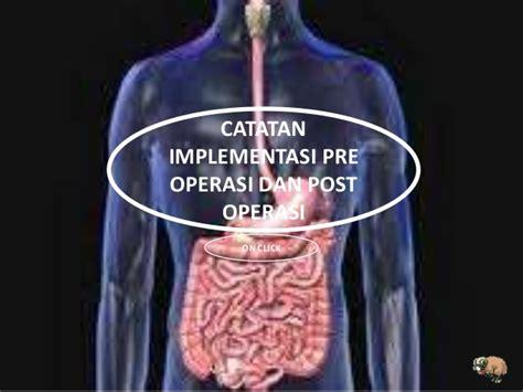 Asuhan Kep Gangguan Sistem Gastrointestinal Dan Hepatobilier Sodikin askep klien dengan apendik by kelompok 4 poltekes tanjungpinang keper