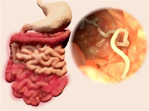Detox Of Intestinal Worms In Humans by How To Do A Intestinal Parasite Cleanse Using