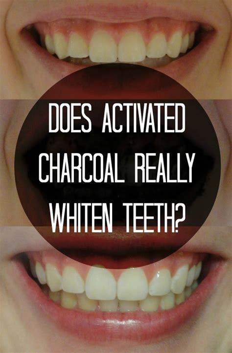 charcoal teeth whitening work  morgan