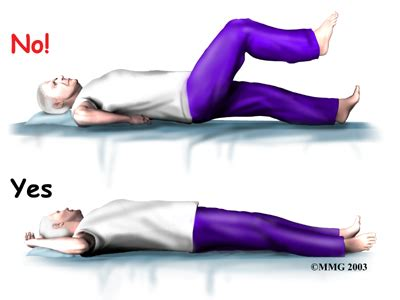 Can A Mattress Cause Hip by Artificial Hip Dislocation Precautions Eorthopod