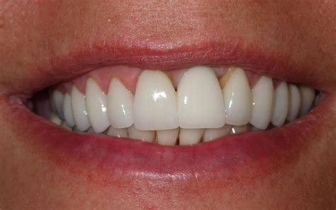 4 missing front teeth implants dentist 02332 tooth replacement with dental implant