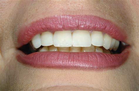 Cabinet Dentaire 18 by Nos Cas Cliniques Du Cabinet Dentaire Soudry 224 18