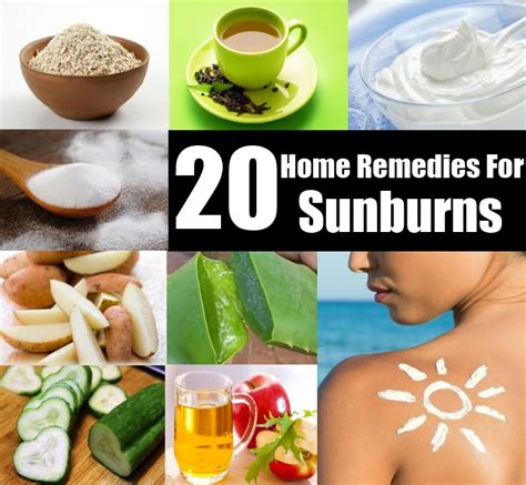 remedies for sunburns