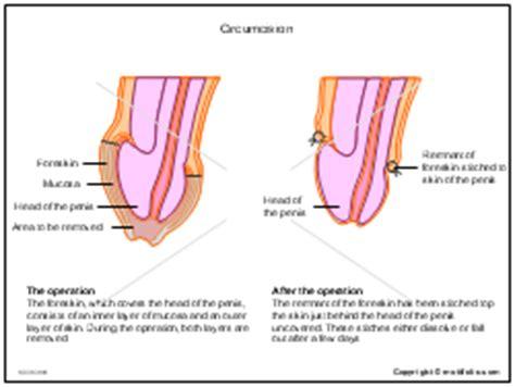 circumcision diagram circumcision ppt powerpoint drawing diagrams templates