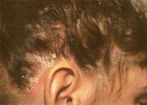 psoriasis cuero cabelludo psoriasis