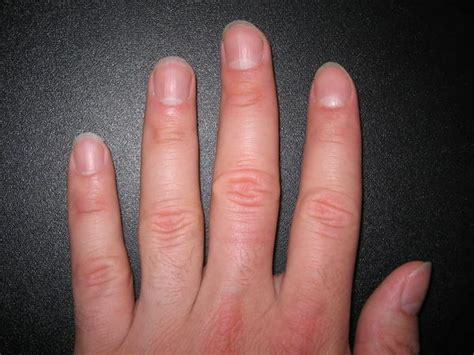 Finger Nail by What Causes Ridges And Bumps On Fingernails Things You