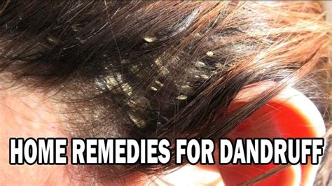 home remedies for dandruff how to get rid of dandruff