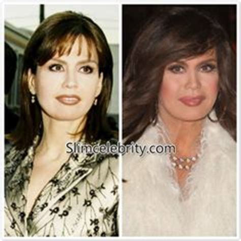 celebrity neck lift 1000 images about slim celebrity on pinterest marie