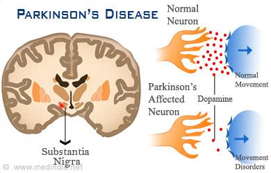 s disease treatment cost how is parkinson s disease treated 171 kathy kiefer