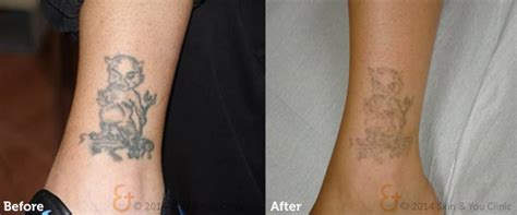 tattoo laser removal side effects painless removal removal no side effects
