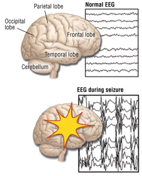 do led lights cause epileptic seizures partial seizures focal seizures guide causes symptoms
