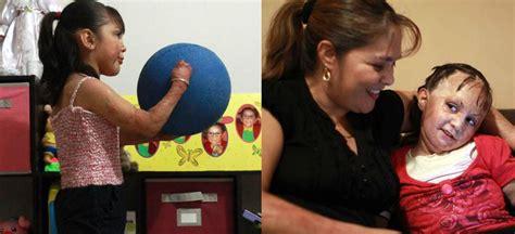 imagenes niños quemados guarderia que no se olvide guarder 237 a abc luis cort 233 s premio 2012