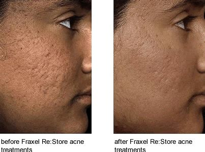 genesis plus laser reviews fraxel restore dual 1550 improves the appearance of acne