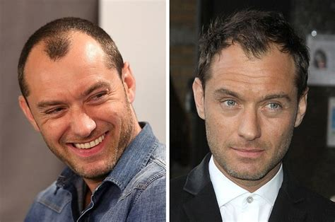 Hair Plug Versus Transplant Celebrity   42 celebrity men who are less bald than they used to be