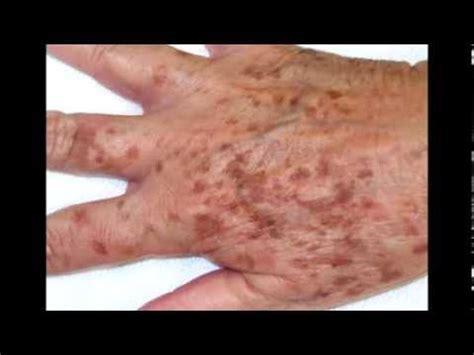 tratamientos tratamientos para las manchas remedios caseros para las manchas en las manos como
