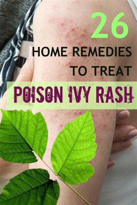 effective home remedies for poison 26 home remedies