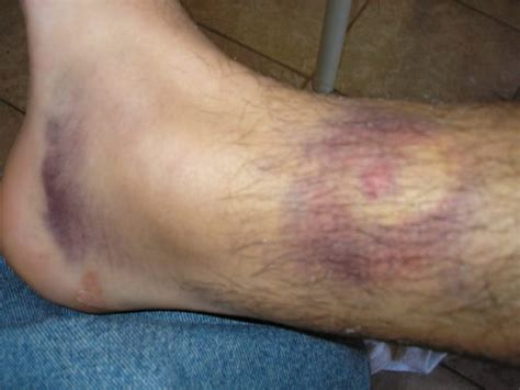 lump on bump bruise on leg can bruise cause a blood clot fact or myth www southof64