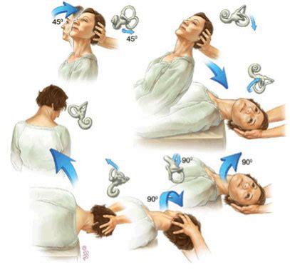 physiotherapy treatment for vertigo bppv
