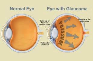 can laser eye surgery make you blind is glaucoma a result of diabetes of the brain prevent