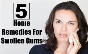home remedies for swollen gums 5 effective home remedies for swollen gums top diy