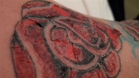 how to treat an infected tattoo collection of 25 infected