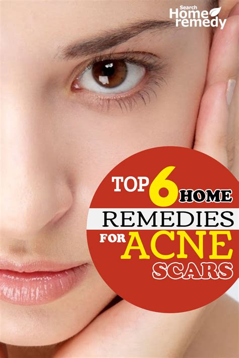 top three homeopathic remedies for acne homeopathic acne home remedies for scars treatment cure natural 6 home