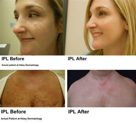 e one ipl session before and after on man and woman face ipl haley dermatology