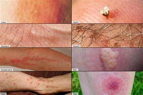 Piqure Puce De Lit by Piq 251 Res D Insectes Comment Reconna 238 Tre Quel Insecte Vous