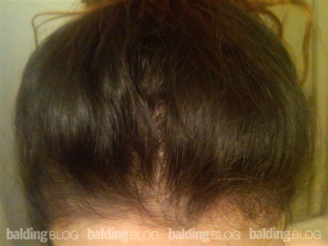 pattern of hair loss in hypothyroidism balding blog female hair loss archives page 7 of 108