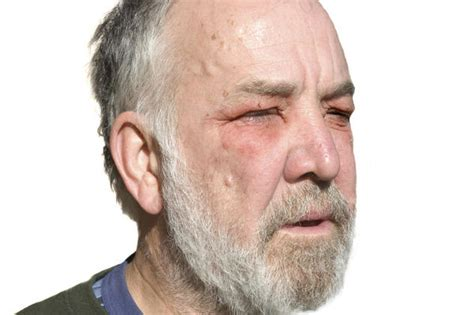 icd 10 code for facial edema diagnosis diagnosis code for cellulitis