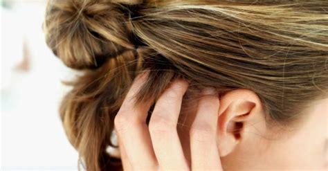 psoriasi lade lade per la psoriasi le terapie migliori per curare la