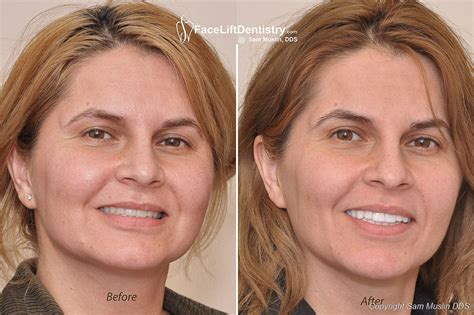 A Facelift For Your Teeth by Anti Aging Profile Correction