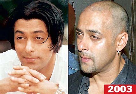 salman khan hair transplant cost salman khan hair transplant cost 5 celebrities who made