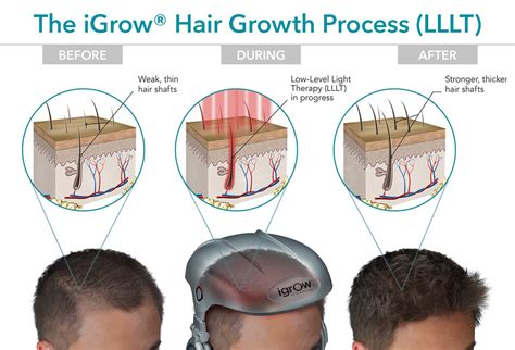 hair growth laser helmet igrow igrow 174 hands free laser hair growth system free gifts