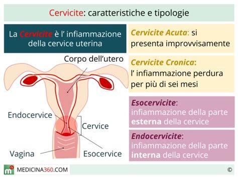 mal di stomaco e giramenti di testa cervicite uterina cervicite