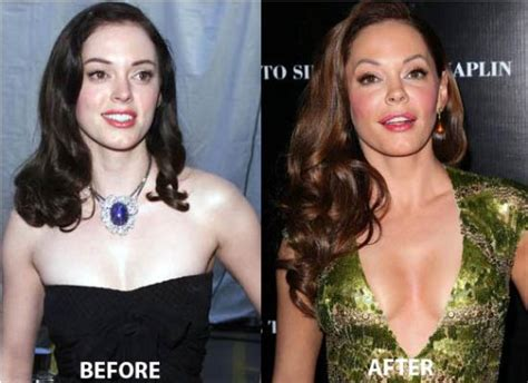 rose tarlow plastic surgery rose mcgowan plastic surgery before and after celeb surgery
