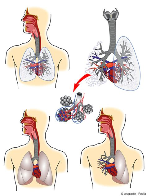 Beschriftung Lunge by Lunge Gesundheits Lexikon Jameda