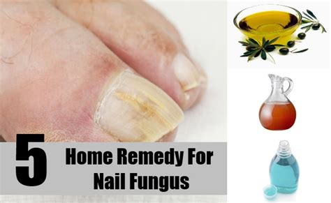 home remedy for nail fungus treatments cure