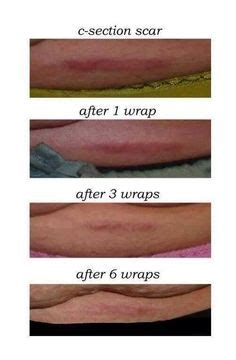 before and after c section defining gel not only lightened her c section scar but it