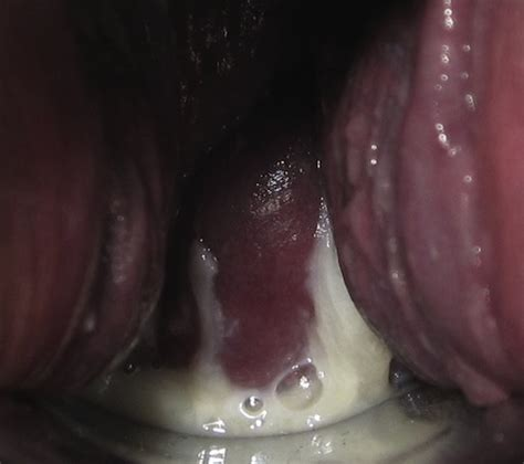 White Clumpy Cottage Cheese Like Discharge by The Gallery For Gt White Clumpy Discharge