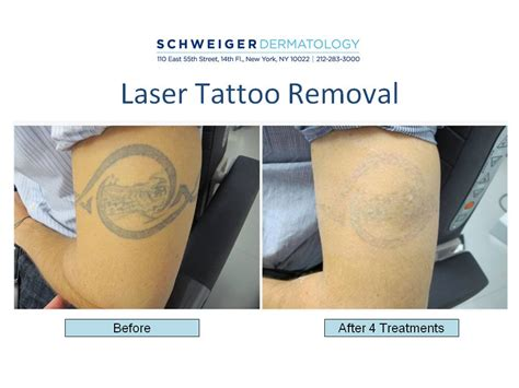 tattoo removal effectiveness nyc cosmetic dermatology new york city cosmetic