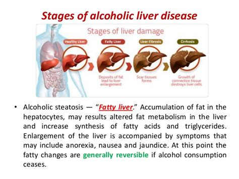 liver failure stages infective hepatitis and cirrhosis