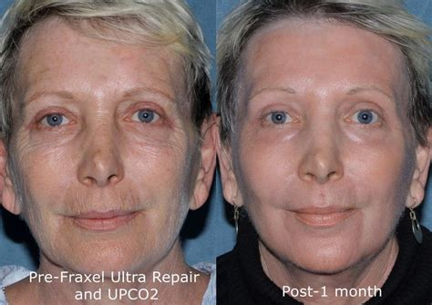Look Younger Without Plastic Surgery by Can You Believe These Amazing Results Look Ten Years