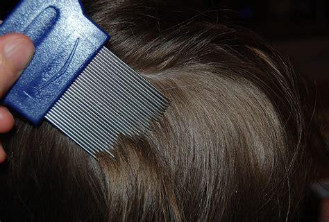 vaske i farbana kosa ne ignorišite ih ove promjene na kosi precizno otkrivaju