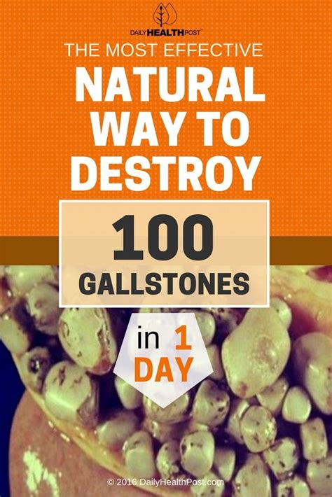 Most Powerful Natiral Brain Detox by 35 Best Gall Stones Images On Health Home