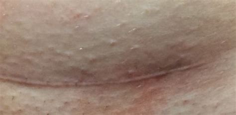 c section bruising c section scar rash looks like bruise photo included