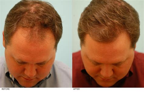can male pattern hair loss be reversed male pattern baldness dallas androgenetic alopecia plano