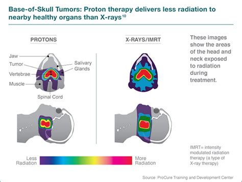 Proton Beam Radiation Therapy by Proton Therapy For And Neck Cancer Seattle Cancer