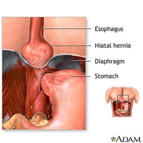 Hiatal Hernia (Discharge Care)   Care Guide